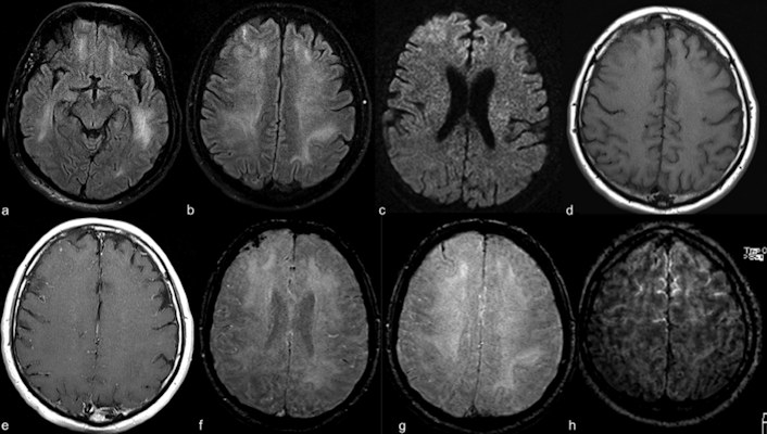 Contrast-enhanced cranial 1.5-tesla MRI examination of a 59-year-old intubated male patient with altered mental status
