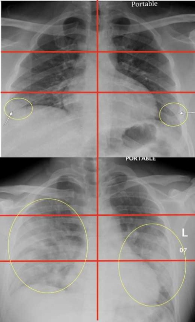 Chest radiographs of a 23-year-old male with no past medical history who tested positive for COVID-19 via reverse transcription polymerase chain reaction and of a 32-year-old overweight (BMI = 30) male positive for COVID-19 with a history of childhood asthma who was subsequently admitted and intubated in the intensive care unit for three days.