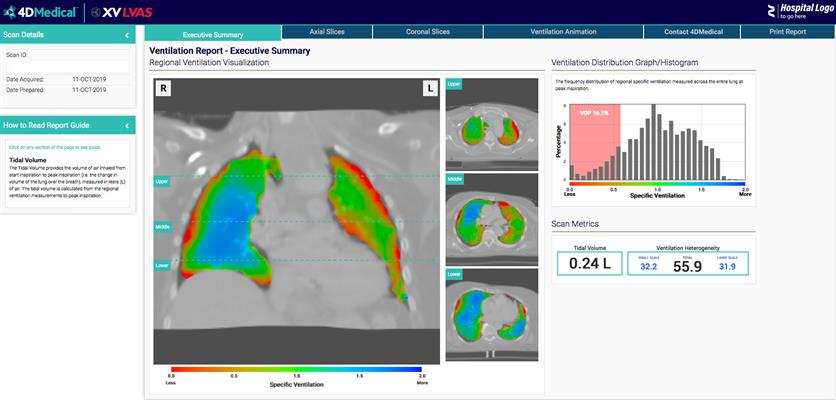 XV Technology quantifies functional lung impairment on fluoroscopy exams and provides ventilation reports