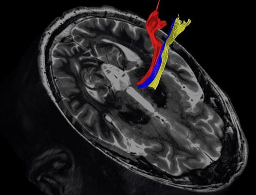Diffusion tractography uses the movement of water molecules to identify tracts that connect different parts of the brain. It can be used to pinpoint the part of the thalamus to treat with focused ultrasound