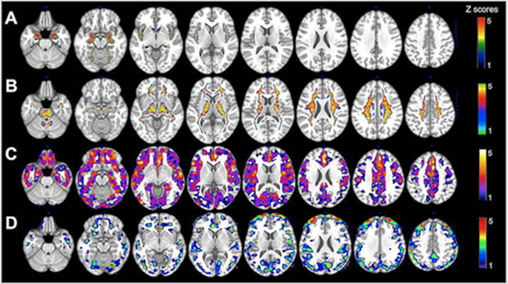 Images showing various MRI gray-matter volumes, displaying regions Alzheimer