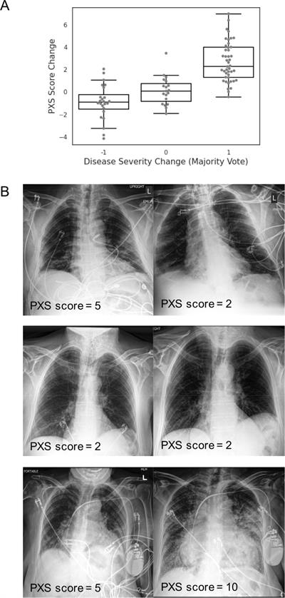 Siamese neural network-based pulmonary x-ray severity score can be used to assess longitudinal change in radiographic disease severity over time in COVID-19 patients