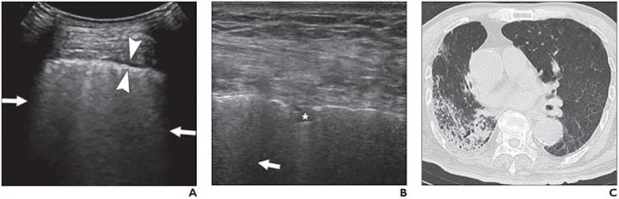 Lung ultrasound image obtained with a convex probe. The outer arrows show confluent B-lines. The middle arrowheads point to a thickened pleural line.