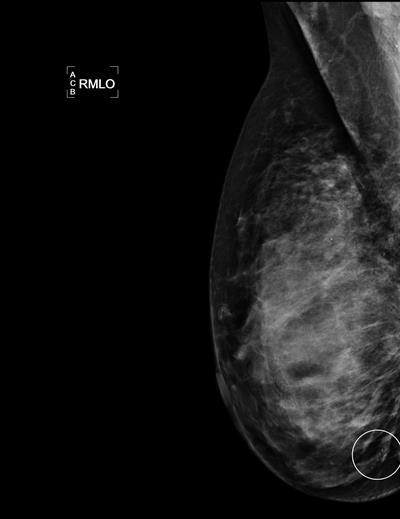 Mammogram shows a cluster of calcifications in a 49-year-old woman with an invasive 4-mm ductal breast cancer that had a true positive assessment by the first reader.
