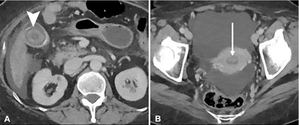 Abdominal and pelvic reconstructed CT images of a 66-year-old woman with cirrhosis obtained in the emergency department for abdominal pain show gallstones detected by the off-hours in-house radiologist during night assignment at 12:30 a.m.