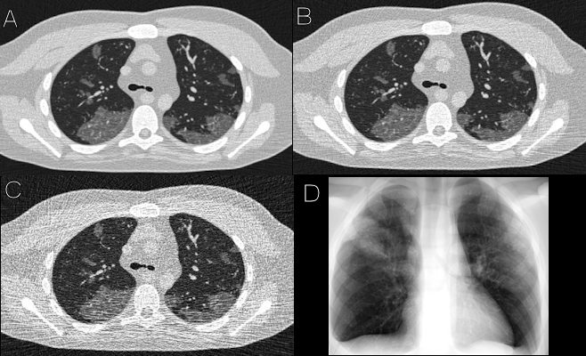 Simulated images of COVID-19 on 4D extended cardiac-torso phantom developed at Duke University