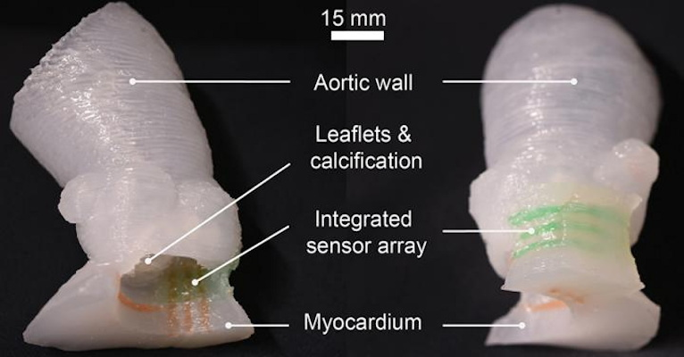 Patient-specific 3D-printed aortic root models with integrated 3D-printed soft sensor arrays can be used to improve planning of TAVR procedures