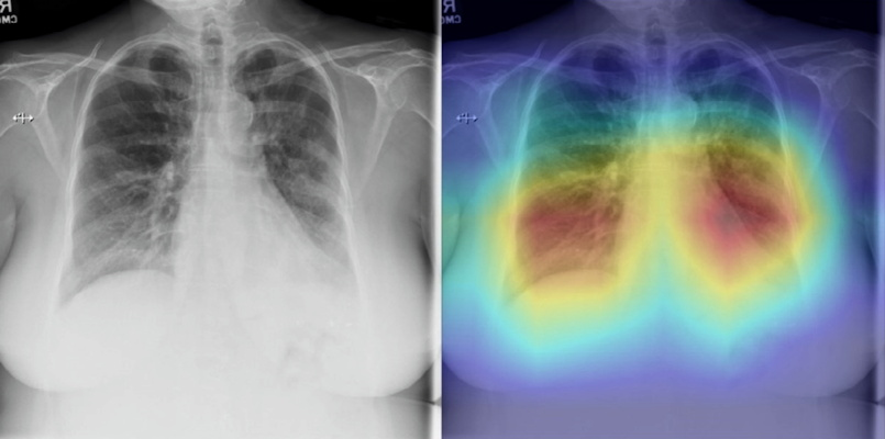 A non-COVID-19 pneumonia case (58-year-old female) which was classified correctly by CV19-Net but incorrectly by all three radiologists. The heatmap highlights the anatomical regions that contribute most to the CV19-Net prediction