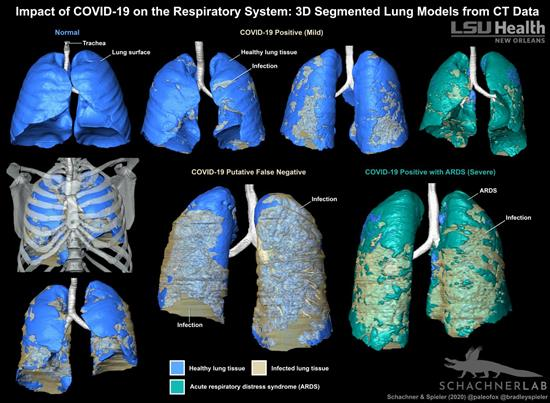 3D-segmented models of lung CT data show the distribution of COVID-19-related infection in the respiratory system