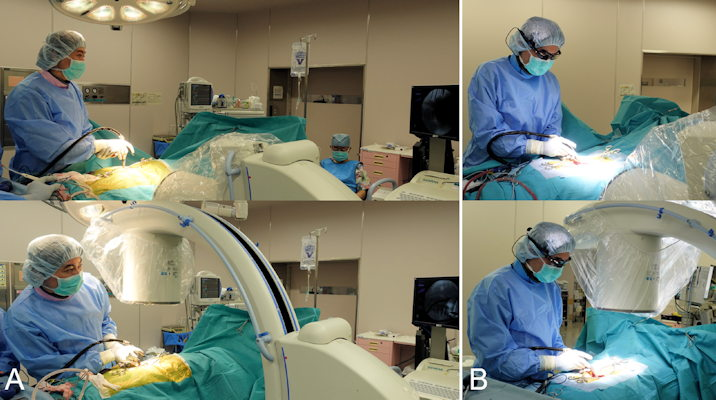 The surgeon views the standard fluoroscopic monitor by turning the head away from the surgical field