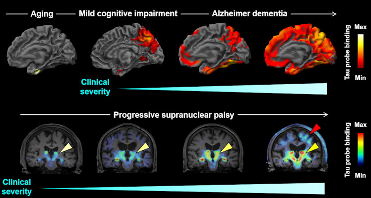 A new PET radiotracer for tau pathologies is showing promise for helping diagnose and differentiate Alzheimer