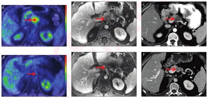 52-year-old man with locally advanced pancreatic adenocarcinoma and major pathologic response