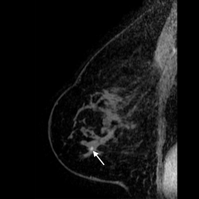 Sagittal T1-weighted fat-saturated contrast-enhanced MRI image of 71-year-old woman with history of breast cancer who presented for screening MRI