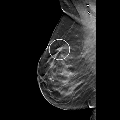 Screening mammography image of same patient taken six months prior