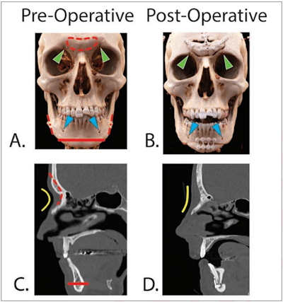 Pre- and postoperative CT scans in two different patients undergoing facial feminization surgery