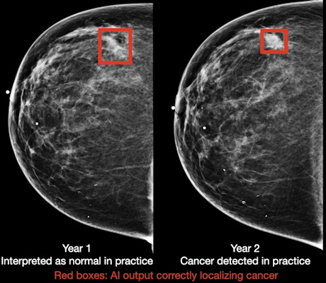 Breast cancer case detected by AI algorithm on mammogram one year before it was diagnosed by a radiologist