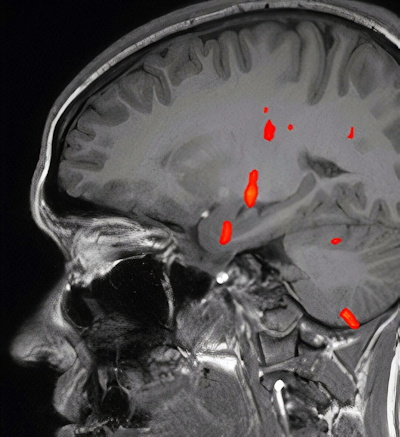 Fused Blood oxygenation level-dependent (BOLD) map on sagittal T1-weighted image shows activation at the level of anteromedial temporal lobe, thalamus, and other regions, but absent activation of the orbitofrontal cortex