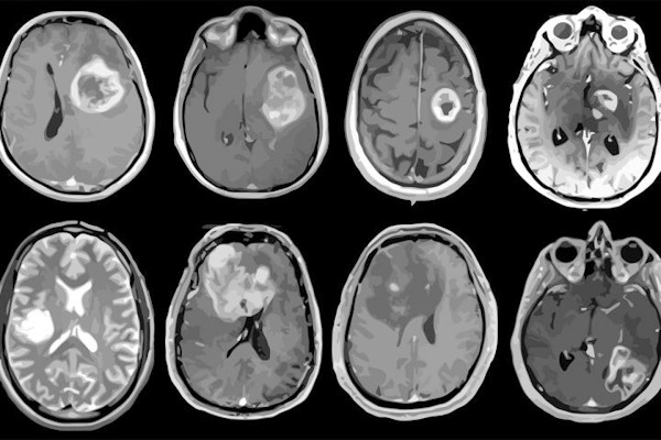 MRI scans of eight patients with glioblastoma