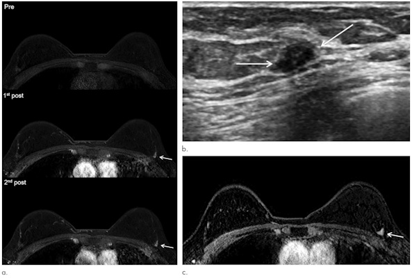 Representative images of cancer missed at MRI in a 46-year-old woman with a personal history of breast cancer