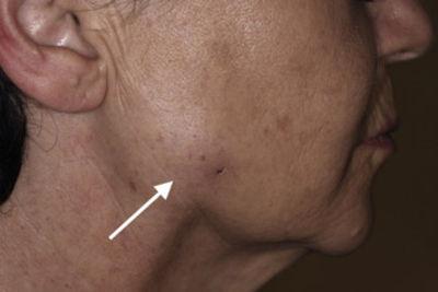 MRI is helping determine facial mass led to through dermal filler, dermalfillerbeforeandafter