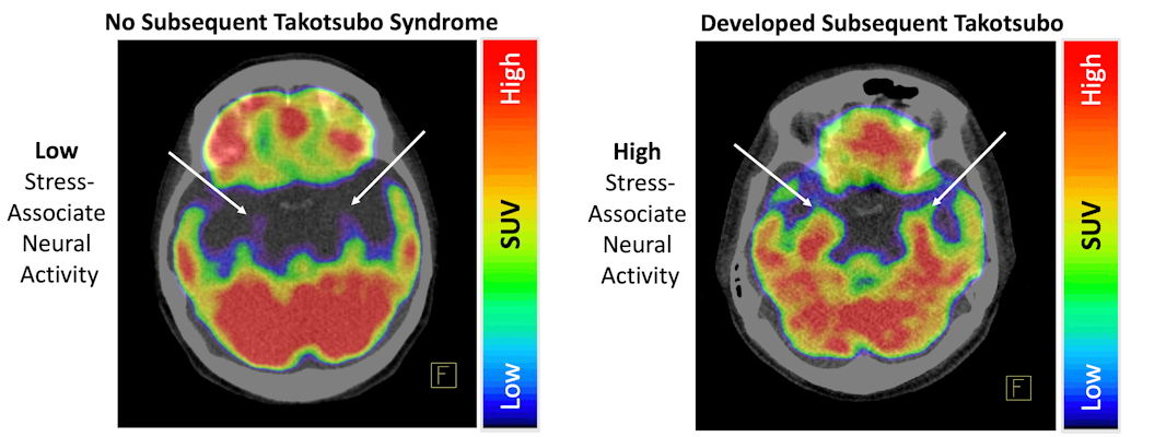 Left, MRI indicating no Takotsubo syndrome. Right, MRI indicating Takotsubo syndrome.