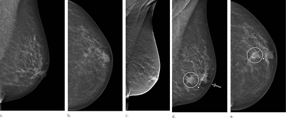 Images in a 72-year-old woman who was diagnosed with a 13-mm lymph node-negative invasive lobular carcinoma luminal B-line human epidermal growth factor receptor 2 breast cancer