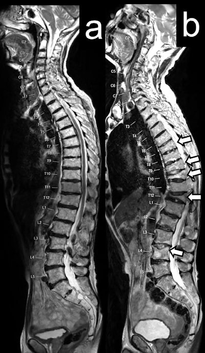 Sagittal T2-weighted MRI spine images in a 71-year-old man with mCRPC, at baseline, and two years after six cycles of radium-223