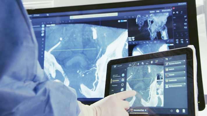 SmartCT includes a table-side touchscreen control that offers interventionalists enhanced diagnostic confidence and streamlined workflows