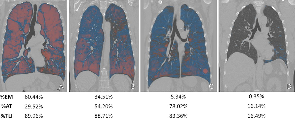 Visualization of lung involvement using attenuation difference maps and emphysema