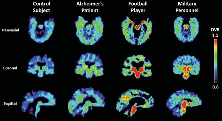 Flornaptitril binds with both tau aggregates and beta-amyloid plaque to enhance PET scan imaging of these pathological proteins in the brain
