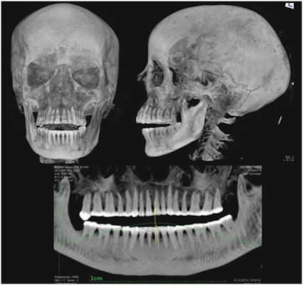 X-ray of the head and the pantomographic image of the teeth of the mummy
