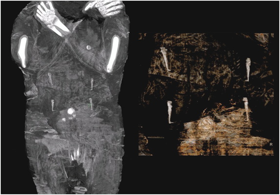 The abdominal area of the mummy with amulets representing the four sons of Horus above the navel area