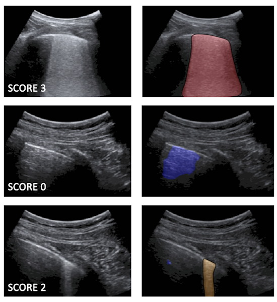 Examples of lung ultrasound images corresponding to score 3, score 0, and score 2