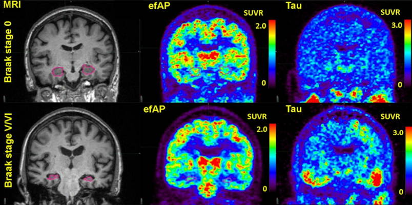 Comparisons of representative subjects. The first column highlights the hippocampus in pink on volumetric MRI. The second column shows early-frame amyloid PET values from dynamic florbetapir-PET. The third column shows standard tau PET