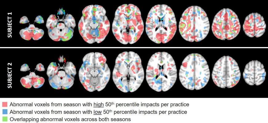 Brain MRI scans of two football players who experienced a different number of head impacts during their seasons