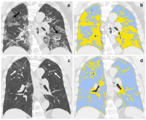 Baseline and six-month follow-up coronal thin-section unenhanced chest CT scans of 79-year-old man, admitted to the emergency department presenting fever, dyspnea, and cough