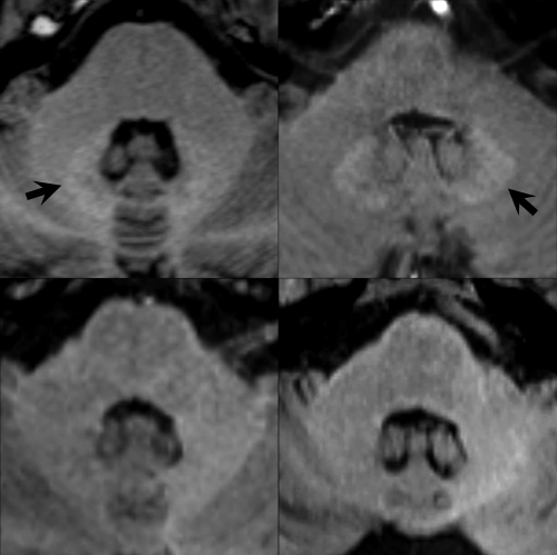 Axial T1-weighted images through the level of the dentate nucleus in patients having prior injections of gadopentetate dimeglumine, gadobenate dimeglumine, gadobutrol, and gadoterate meglumine