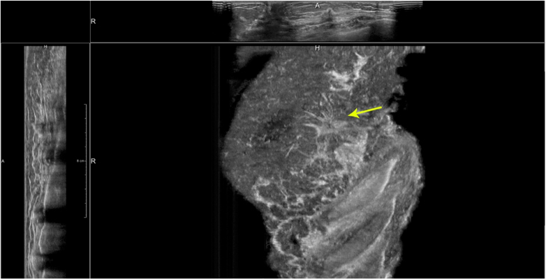 Lateral ABUS view of the left breast with a small, spiculated cancer present in the upper outer quadrant