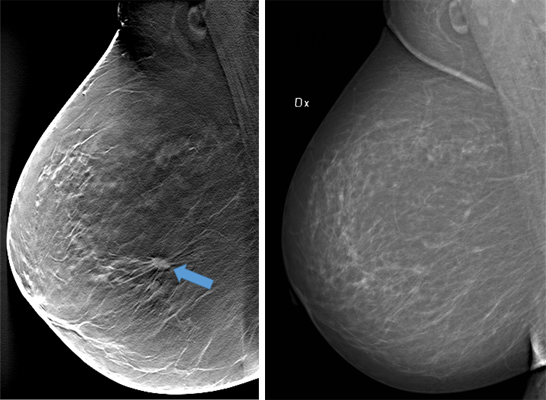 A 1-cm large tumor in a nondense breast is not evident on digital mammography but is clearly visible on DBT