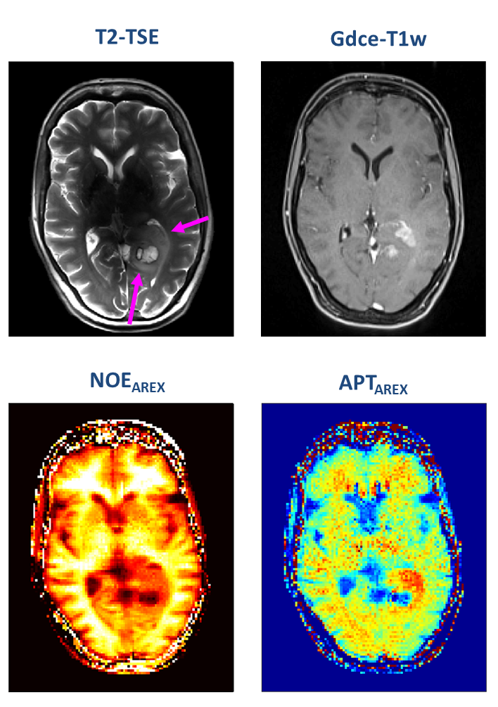 A patient with newly diagnosed glioblastoma underwent relaxation-compensated chemical exchange saturation transfer (CEST) imaging at 7.0 tesla