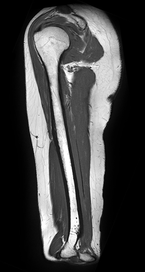 Sagittal proton density, fast spin-echo image of the humerus