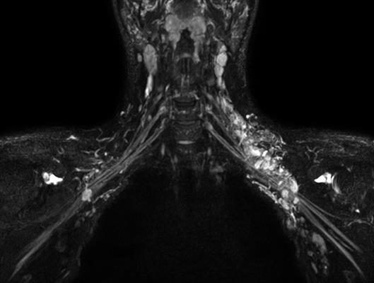 Ingenia Ambition MRI with 3D NerveView can help visualize the brachial and lumbar plexus with a high-resolution T2-weighted, turbo spin-echo acquisition with reduced remaining intralumen signal of the veins