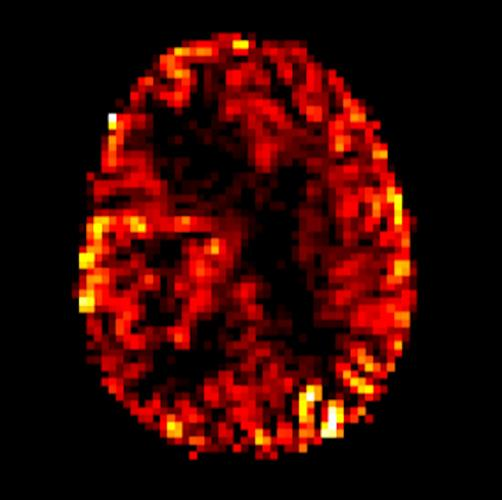 ASL perfusion imaging shows increasing blood flow in a malignant brain tumor in the right cerebral hemisphere