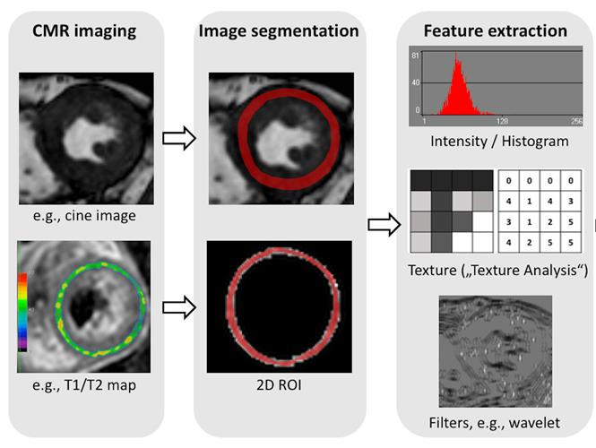 Radiomic feature extraction can be performed on all types of MR images, such as cine images or T1/T2 maps