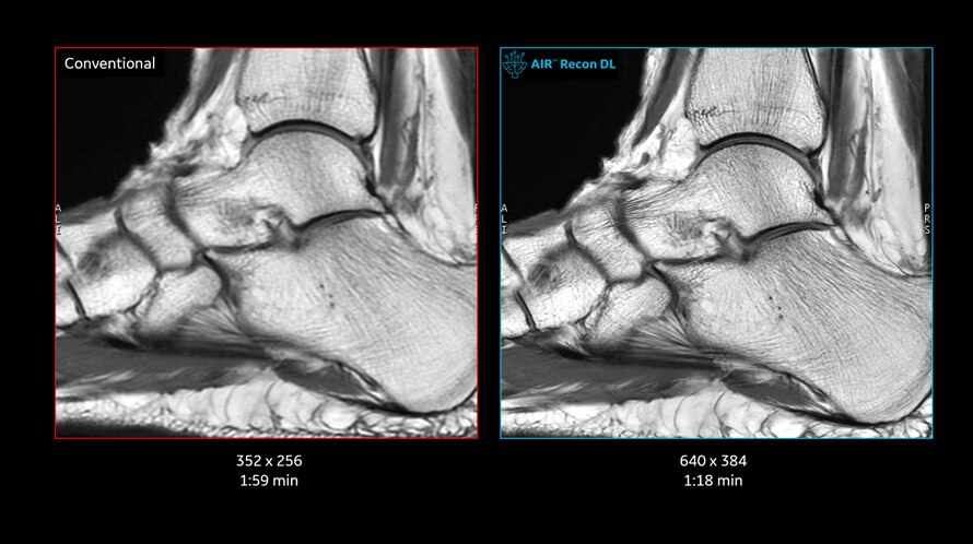 Ankle images with conventional MR reconstruction and GE