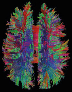 White matter fiber pathways of the brain as depicted with MR tractography