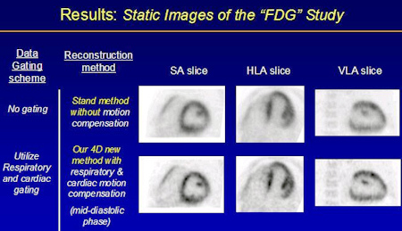 Static images of the FDG study