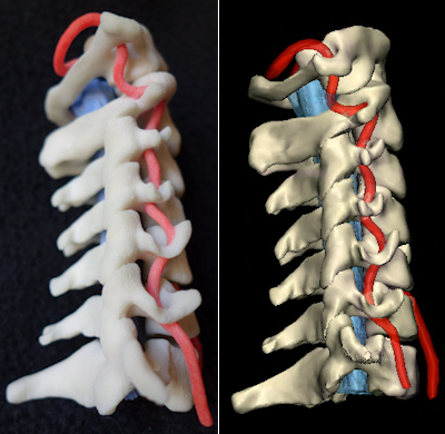 3D printing of internal anatomical structures