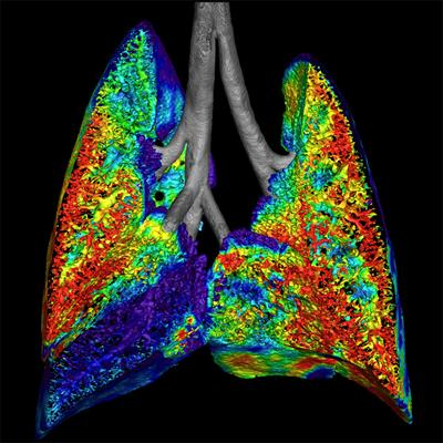 Preclinical image of cystic fibrosis