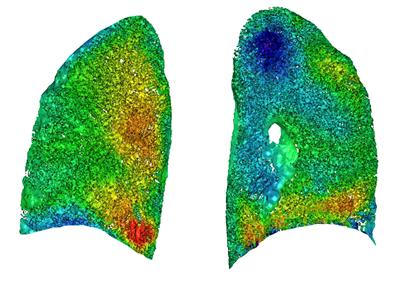 Image from preclinical study of human lungs